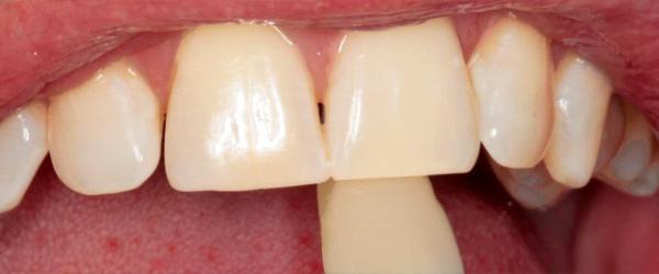 white & brite teeth whitening system instructions